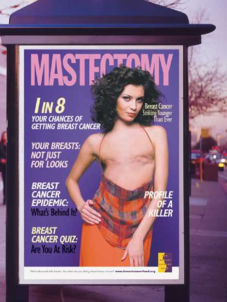 old mastectomy