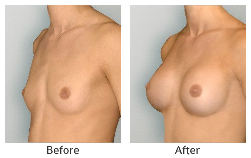 breast_augmentation1
